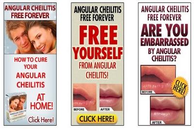 Angular Cheilitis Free Forever
